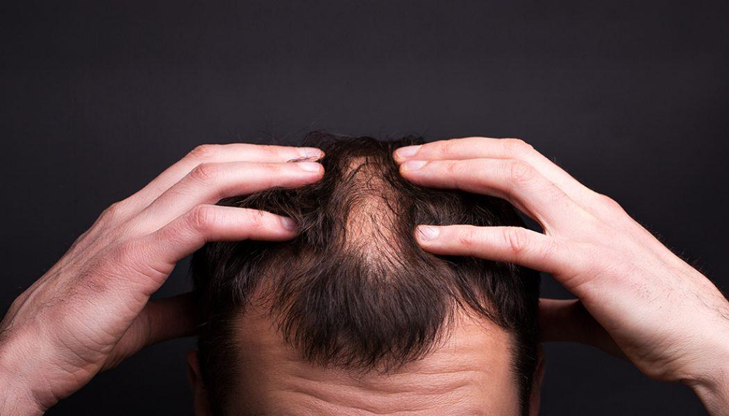 Загубата на коса…